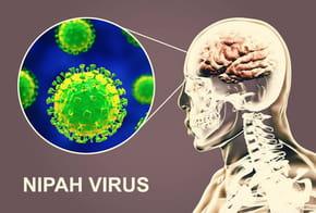 Virus Nipah: c'est quoi, transmission, symptômes, mortalité